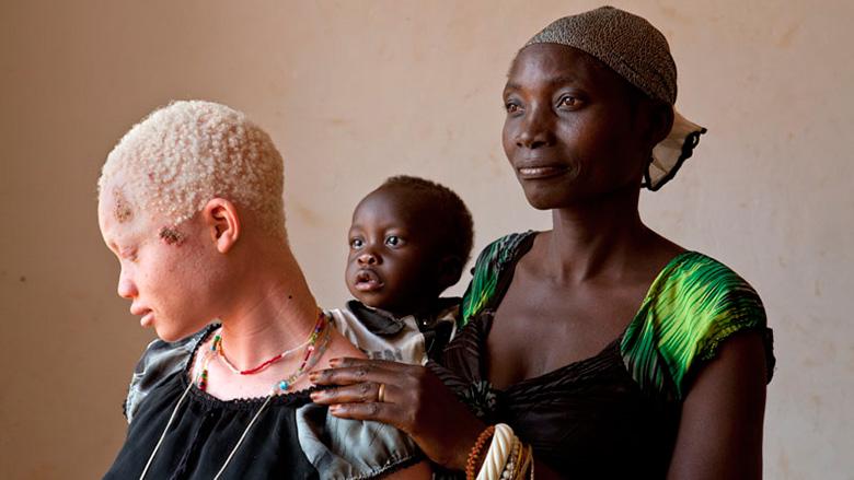 Bajo el mismo sol: La lucha por la inclusión social de las